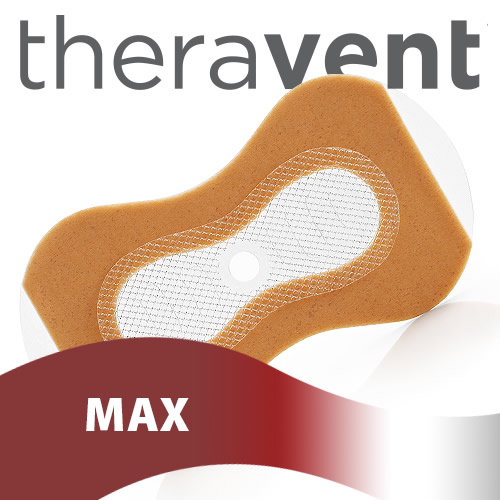 Theravent MAX Advanced Nightly Snore Therapy - 20 Night Supply
